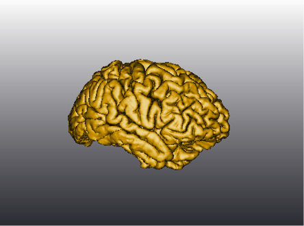 3D rendering of brain scan